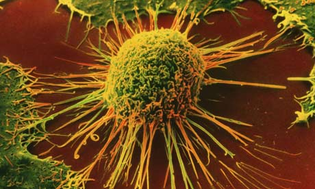 Ireland to Witness Significant Rise in Cancer Cases, predicts WHO