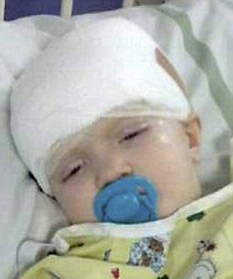 Toddler Born With Craniosynostosis Successfully Operated