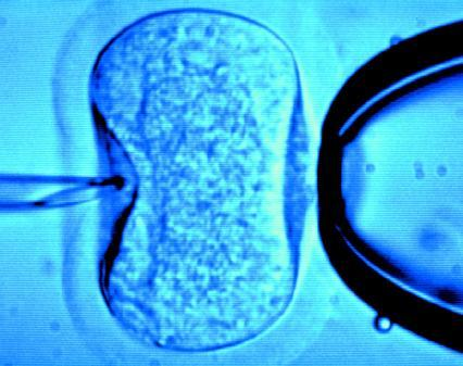 IVF Clinics Should Be Allowed To Transfer Two Embryos, Says Study