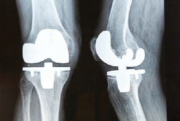 Knee Replacements Should Be More Categorized