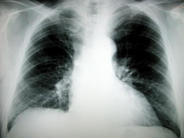 Combination Treatment Works for Elderly Lung Cancer Patients