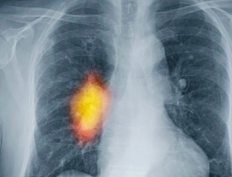 Study says many lung cancer tumors do no harm