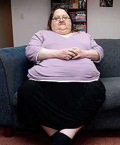 Obese women will go to S. Korea for life-saving surgery