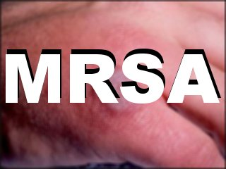 St. Peter's and Ashford Hospital Celebrates One Year MRSA Free