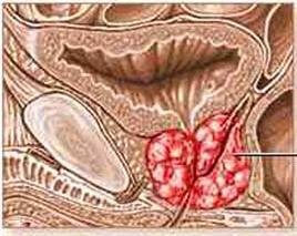 Researchers Discover New Type of Prostate Cancer