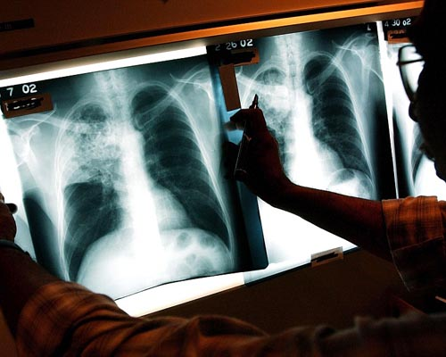 1,500 Students and Faculty Members Tested for Tuberculosis in High School in Southern California