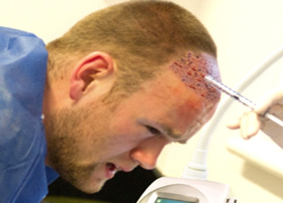Wayne Rooney Young Age Wayne Rooney Gets Hair Transplant for Second Time TopNews Arab