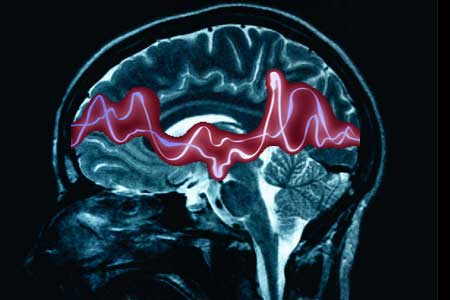 Alliance Accuses NHS of Neglecting Patients with Neurological Conditions