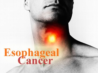 Benefit of PET or PET/CT in oesophageal cAncer is not proven
