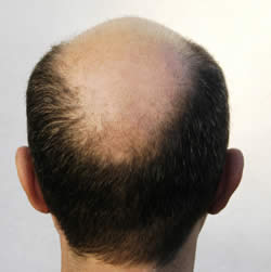 Cancer Hair Loss on Prostate Cancer Risk More In Men Who Have Hair Loss   Topnews Arab